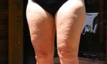 жахливі фото ніг з целюлітом третя стадія