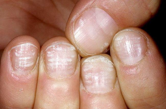 Білі плями на нігтях пальців рук