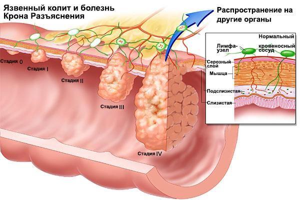 Хвороба крона: ускладнення