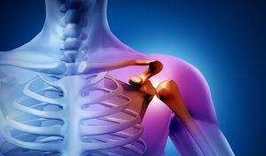 Хвороби плеча і їх лікування в Ізраїлі