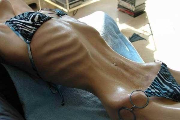 Булімія - лікування захворювання