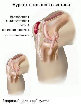 Картинка колінного суглоба