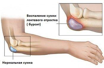 Картинка ліктьового суглоба