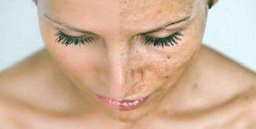 Чиста шкіра без рубців від прищів: 11 копійчаних рецептів