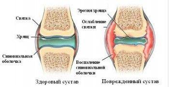 Здоровий і ушкоджений суглоб
