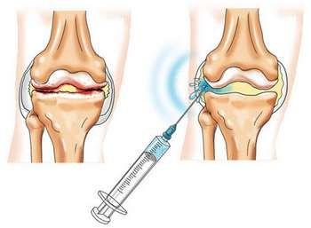 Укол в колінний суглоб