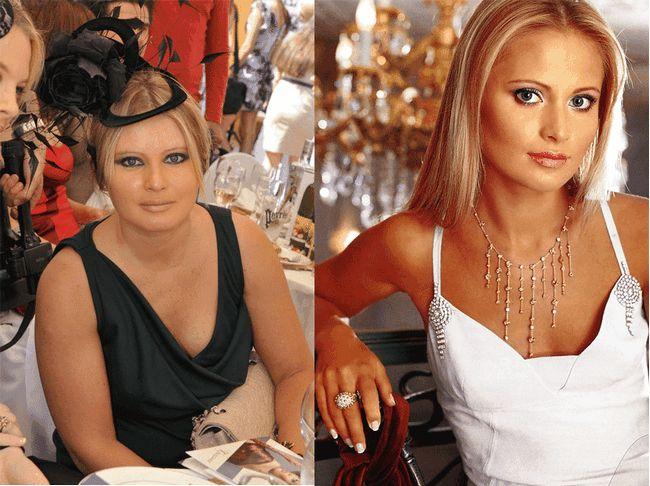 Фото до і після схуднення. Чи можна вірити фото схудлих