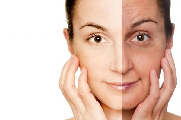 Фотоомолодження шкіри, або як стати молодий без пластики