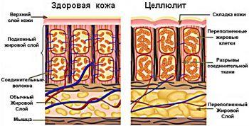 Де зустрічається целюліт на чоловічому тілі і як його лікувати?