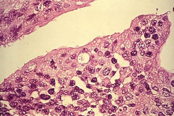 Хламідіоз - причини і симптоми