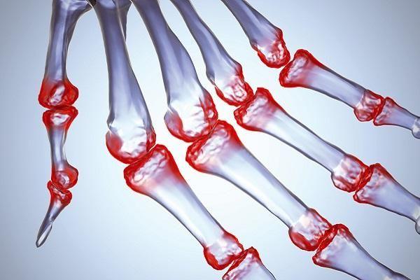 Інфекційний (септичний) артрит: лікування