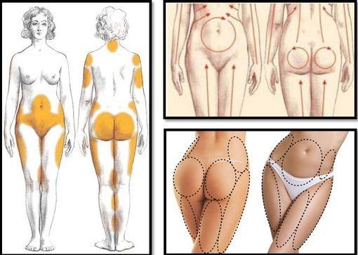 Як прибрати целюліт на окремих частинах тіла