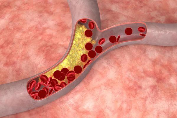 Як зменшити кількість холестеринових бляшок?