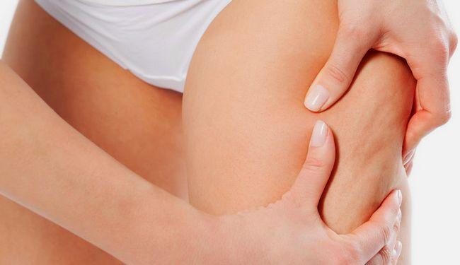 Масаж від целюліту: як робити, засоби для масажу, результати