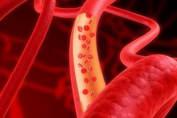 Методи лікування вегето-судинної дистонії