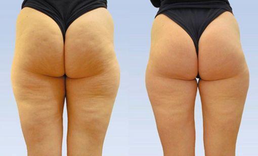 Від анорексії до ожиріння - усього один крок