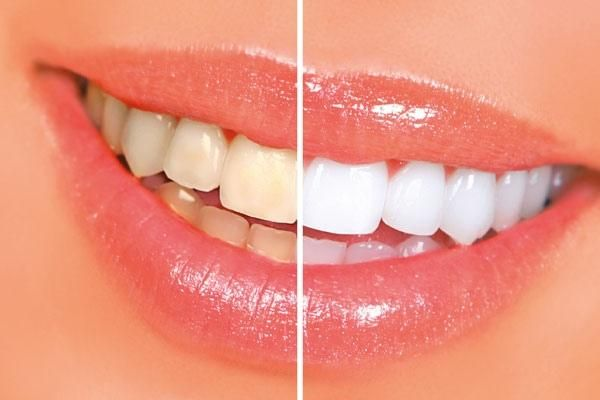 Відбілювання зубів перекисом і содою