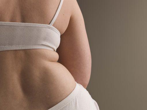 Ожиріння 3 ступеня - не привід опускати руки!