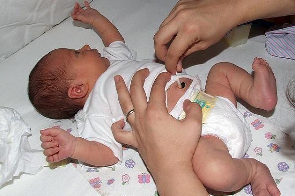 Пупкова рана у новонародженого