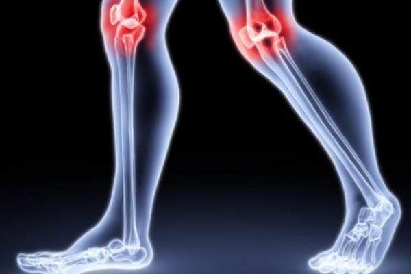 Синдроми і лікування остеоартрозу