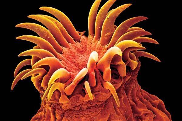 Очищення організму від паразитів
