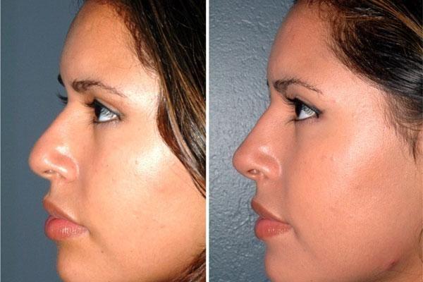 Навіщо потрібна ринопластика носа
